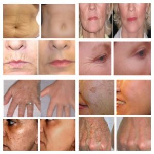 The role of peptides Anti Aging