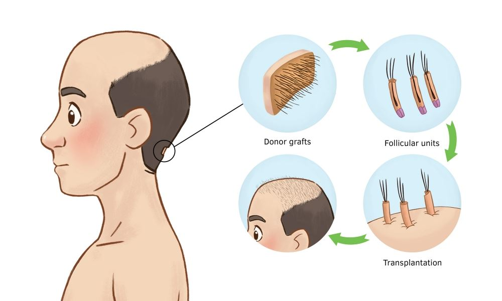 Male Pattern Baldness FAQs And Treatment 1